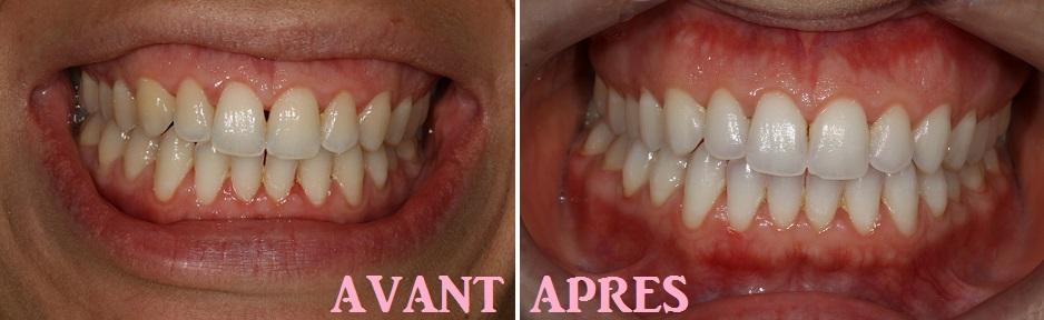 Blanchiment des dents dentiste avant apres
