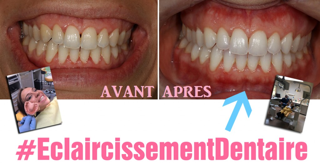 blanchiment dent dentiste avis